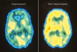 This photo of a brain scan found on WebMD depicts how someone who suffers from depression has a physicallly different brain than someone who does not suffer from depression.